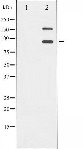 Phospho-IGF1R pTyr1165 + pTyr1166 Antibody (PA5-35452)