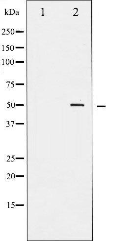 Phospho-RUNX1 / AML1 pSer303 Antibody (PA5-35491)