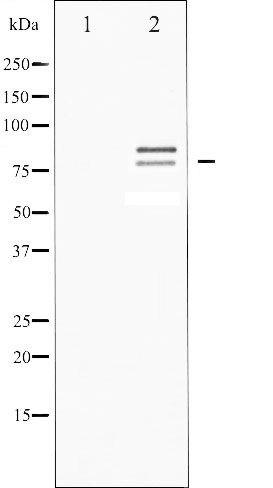 Phospho-Hormone-Sensitive Lipase pSer554 / pSer855 Antibody (PA5-35493)