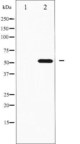 Phospho-p70 S6 Kinase beta pSer423 Antibody (PA5-35508)