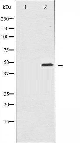 Phospho-IKK gamma pSer31 Antibody (PA5-35511)