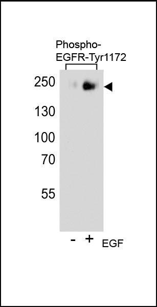 Phospho-EGFR pTyr1172 Antibody (PA5-35512)