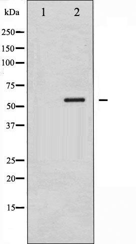Phospho-CaMK4 pThr200 Antibody (PA5-35547)