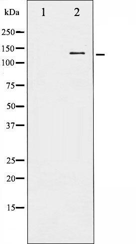 Phospho-FAK (Tyr576) Antibody (PA5-35592) in Western Blot