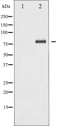 Phospho-NFkB p65 (Ser276) Antibody (PA5-35600) in Western Blot