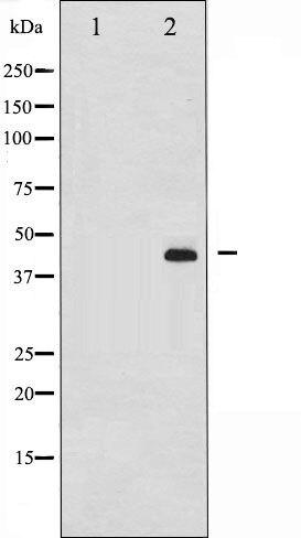 Phospho-MEK1 + MEK2 pSer217 Antibody (PA5-35603)