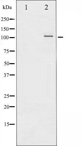 Phospho-NFkB p52 pSer872 Antibody (PA5-35609)