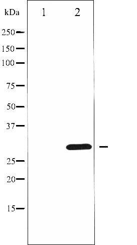 Phospho-Cyclin D3 (Thr283) Antibody (PA5-35683)