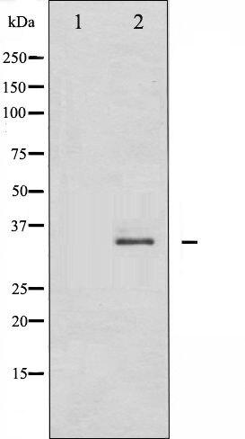 Phospho-CDK2 (Thr160) Antibody (PA5-35694) in Western Blot