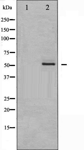 Phospho-Erythropoietin Receptor pTyr368 Antibody (PA5-35714)