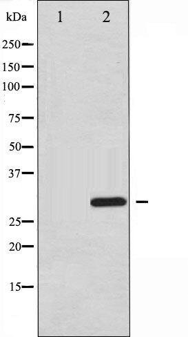 Phospho-ATF1 pSer63 Antibody (PA5-35717)