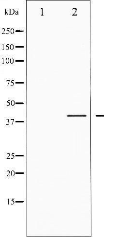 Phospho-CREB pSer142 Antibody (PA5-35732)