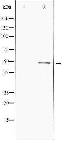 Phospho-ATF2 pSer62 Antibody (PA5-35740)