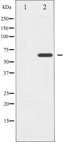 Phospho-Ezrin pThr566 Antibody (PA5-35743)