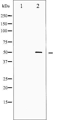Phospho-SRF (Ser99) Antibody (PA5-35749)