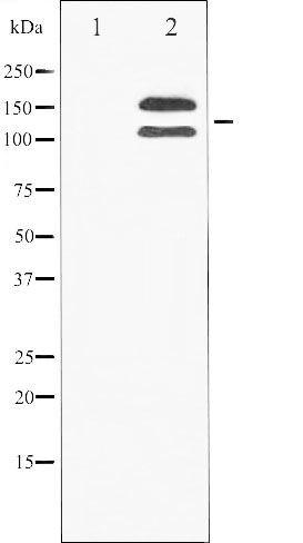 Phospho-Fibroblast Growth Factor Receptor 1 pTyr154 Antibody (PA5-35751)