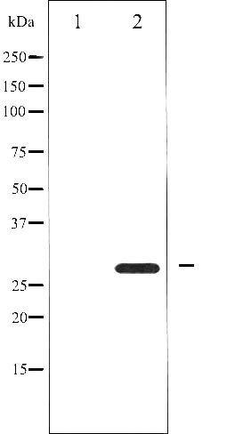 Phospho-BCL-2 pSer87 Antibody (PA5-35763)