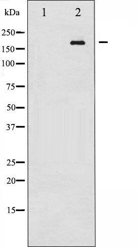 Phospho-Ret pTyr1062 Antibody (PA5-35772)
