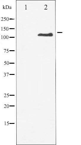 Phospho-CSF-1 / MCSF Receptor pTyr809 Antibody (PA5-35775)