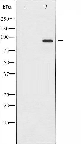 Phospho-ICAM-1 pTyr512 Antibody (PA5-35795)