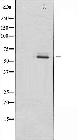 Phospho-DAB1 (Tyr232) Antibody (PA5-35827) in Western Blot