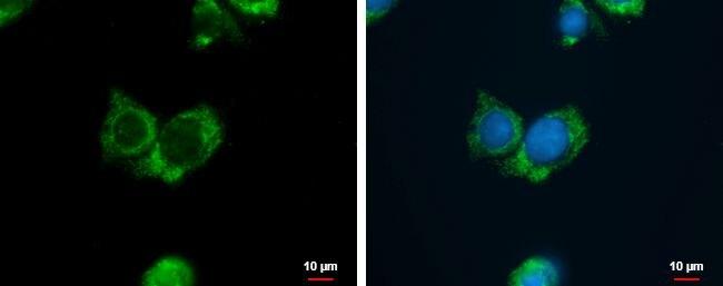 AGMAT Antibody (PA5-35849)