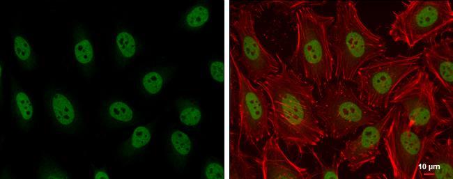 ARID2 Antibody (PA5-35857) in Immunofluorescence