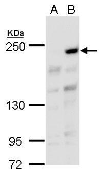 ARID2 Antibody (PA5-35857) in Western Blot