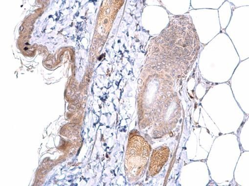 ATOH7 Antibody (PA5-35859) in Immunohistochemistry (Paraffin)