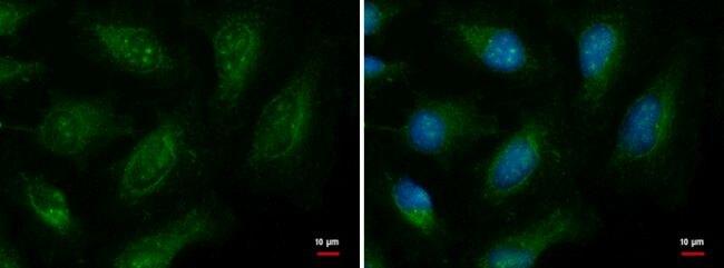 EXOC8 Antibody (PA5-35880) in Immunofluorescence