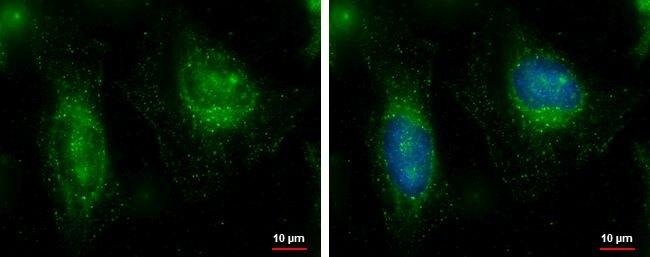 FAM21C Antibody (PA5-35883) in Immunofluorescence