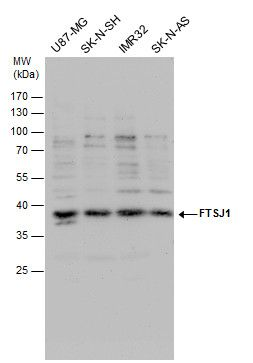 FTSJ1 Antibody (PA5-35886)