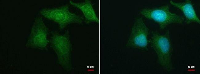 HBS1L Antibody (PA5-35888) in Immunofluorescence