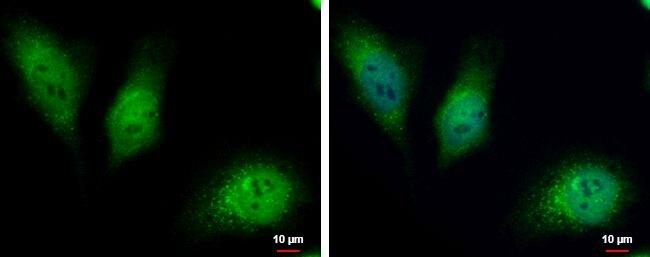 HKDC1 Antibody (PA5-35894)
