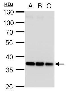 HOXD13 Antibody (PA5-35899)