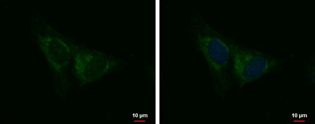 IQCA1 Antibody (PA5-35901)