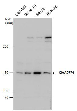 CAZIP Antibody (PA5-35908) in Western Blot