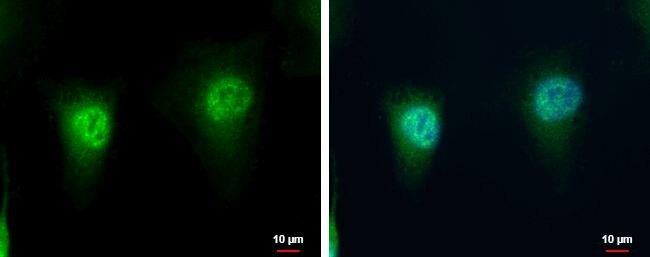 LZIC Antibody (PA5-35917)