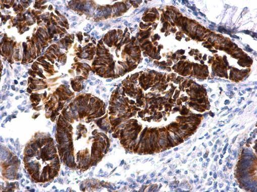 MBNL2 Antibody (PA5-35921)