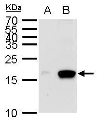 MIA Antibody (PA5-35927) in Western Blot
