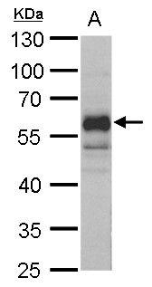 NFIA Antibody (PA5-35936) in Western Blot