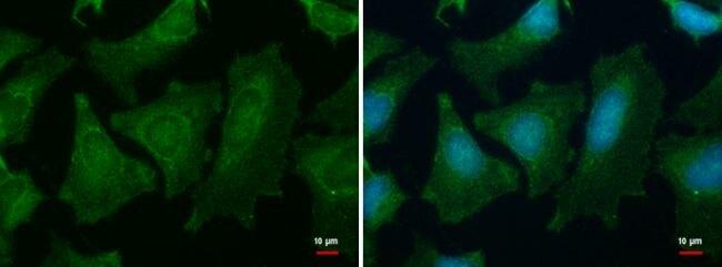 PGM1 Antibody (PA5-35947)