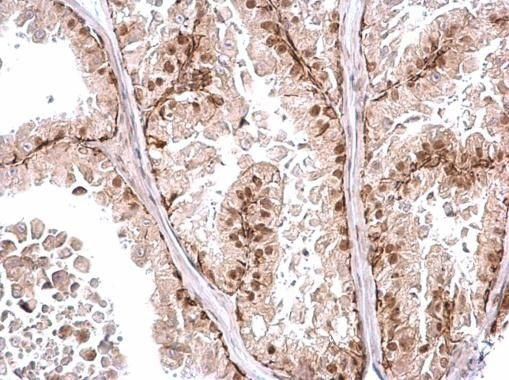 POLR2D Antibody (PA5-35953) in Immunohistochemistry (Paraffin)