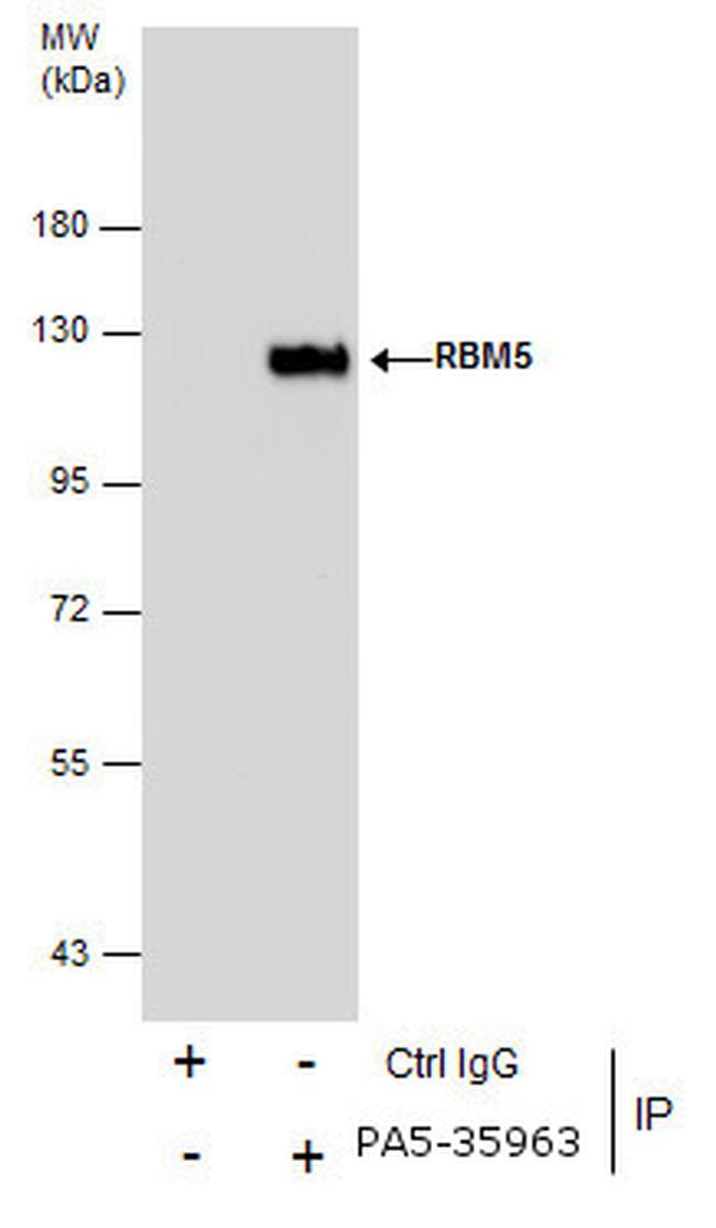 RBM5 Antibody (PA5-35963) in Immunoprecipitation