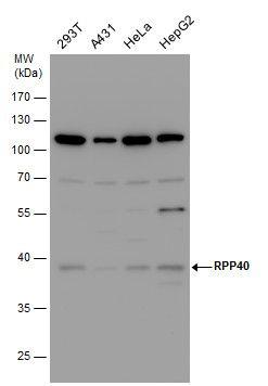 RPP40 Antibody (PA5-35968) in Western Blot