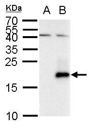 Secretin Antibody (PA5-35973) in Western Blot