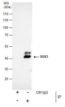 SOX3 Antibody (PA5-35983) in Immunoprecipitation