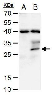 STC1 Antibody (PA5-35990) in Western Blot