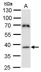 TFB1M Antibody (PA5-35994)
