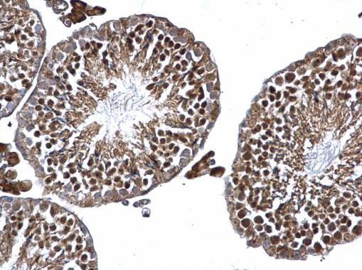 TRIM16 Antibody (PA5-36001) in Immunohistochemistry (Paraffin)